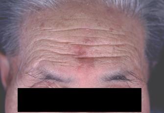 日光角化症